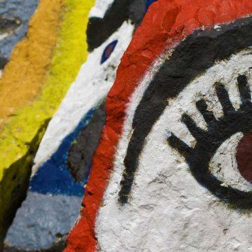 Patologia Vascolare Oculare: Occlusione Venosa Retinica (Rvo)
